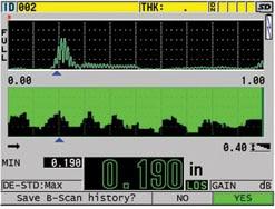 Chế độ hiển thị trong nhà, B-scan mode