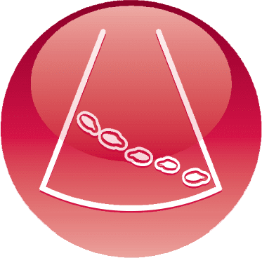 Kiểm tra siêu âm Phased Array